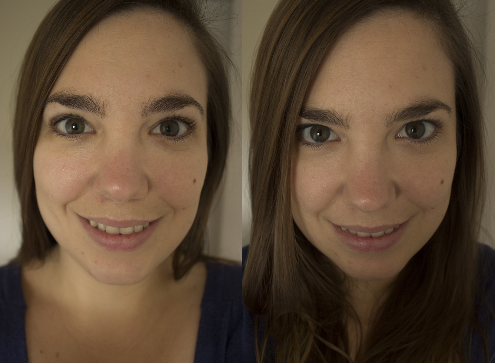 Before and after Cicatricure Beauty Cream